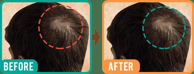 Indulekha Neemraj Hair Cleaner A+