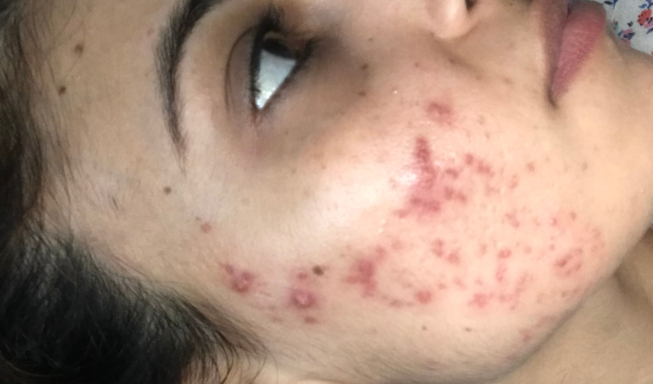 Hello, I am 32 female struggling with hormonal acne. My face is full of  acne scars and red marks. Using Avene Cleanance products. Pls help | Nykaa  Network