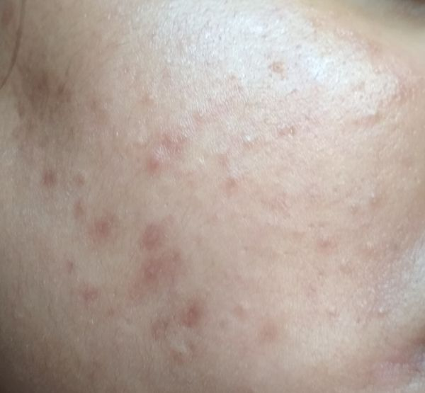 How Can I Get Rid Of Comedonal Acne White Comedones Small Bumps On Face Plssss Hlp Me I M Having Dry Skin Now Nykaa Network