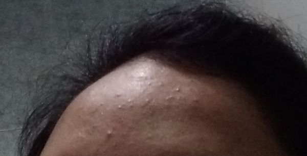 Forehead Acne I Have Tiny Bumps On Face And Forehead Tried Tea Tree Oil And Alovera It S Dissapeard For Few Days And Again Come Back Please Help It S Visible In Sunlight Mostly Nykaa Network